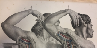 Male and Female lymph node dissection from Surgical Anatomy by Joseph Maclise (1851).